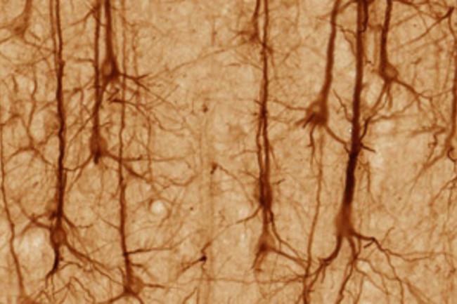 pyramidal neuron brain - brainmaps.org