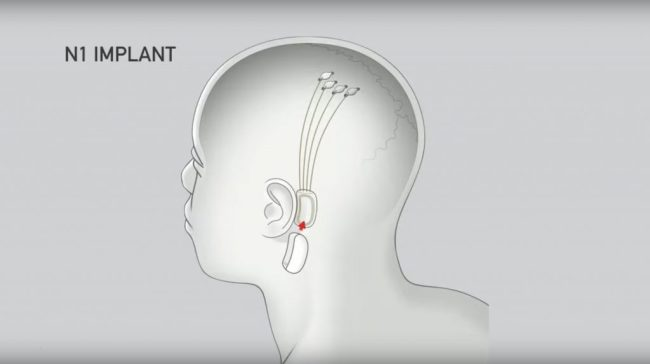 Neuralink Implant Chip - Neuralink