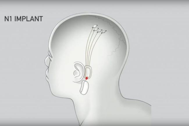 Neuralink Implant Chip - Neuralink