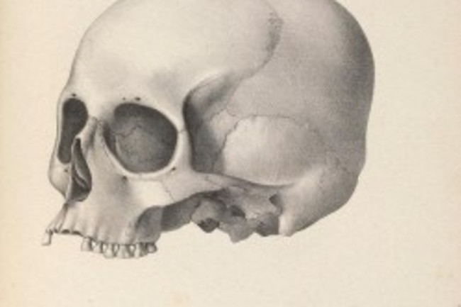 """A hand-drawn skull, lacking its jaw bone, labeled plate nine, """"Peruvian, from the Temple of the Sun, drawn from Nature and on Stone by John Collins."""""""
