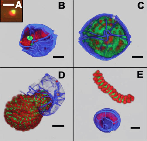 Dinoflagellatparasite.jpg