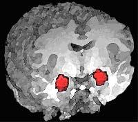 Amygdala_position.jpg