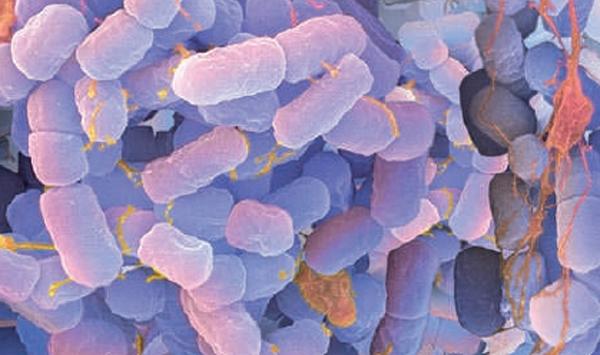 E.coli.jpg