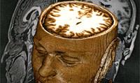 Brain_scans.jpg