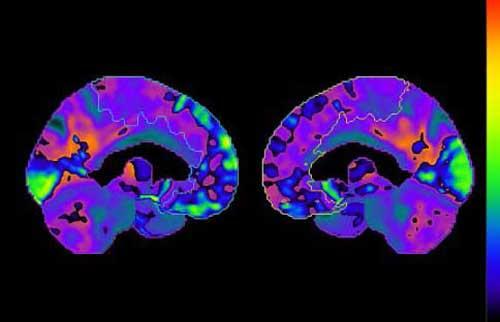 brain-PET.jpg