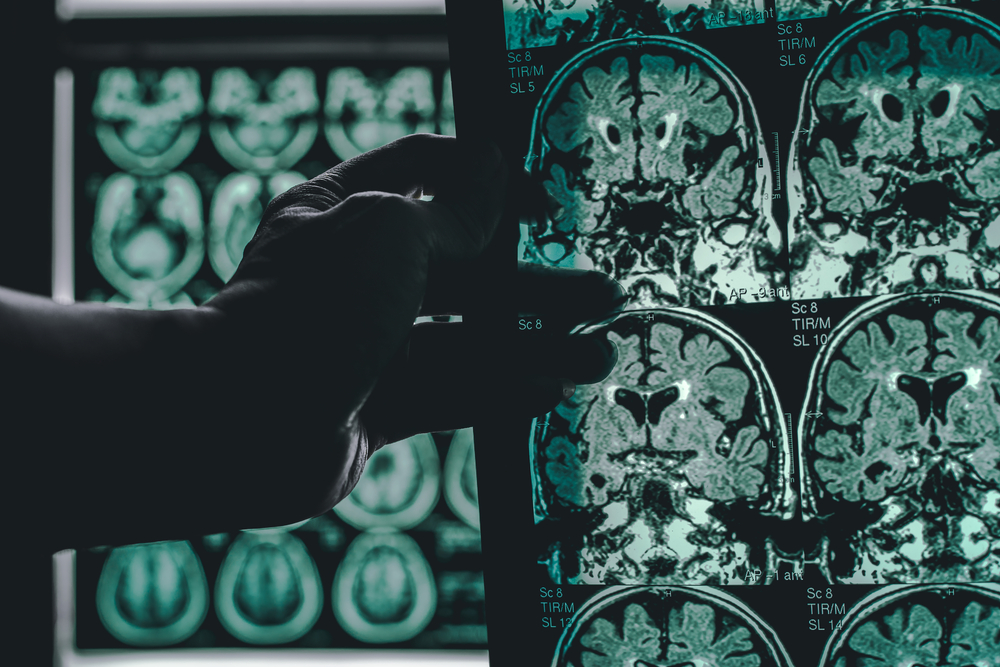 High Levels of 'Bad' Cholesterol Tied to Early-Onset Alzheimer's
