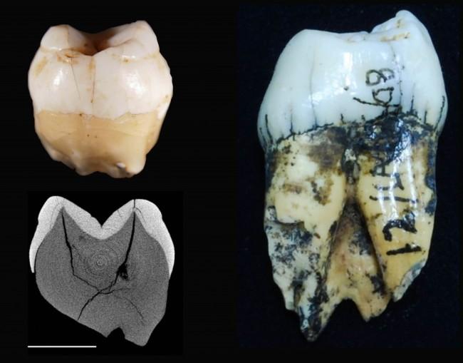 teeth-for-media-1024x802.jpg