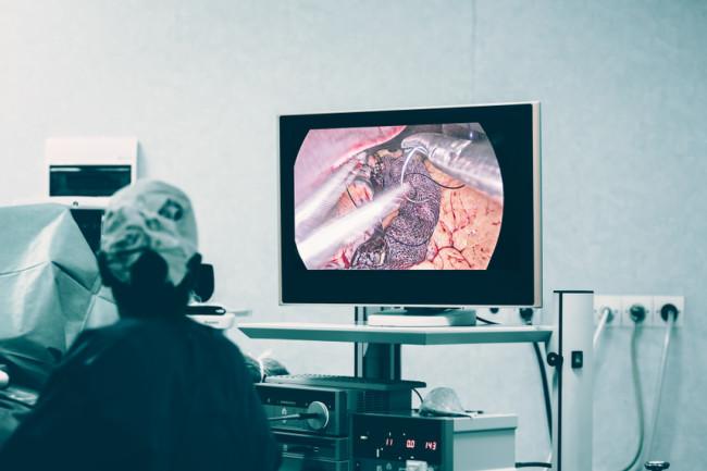 gastric bypass weight loss sleeve surgery camera - shutterstock