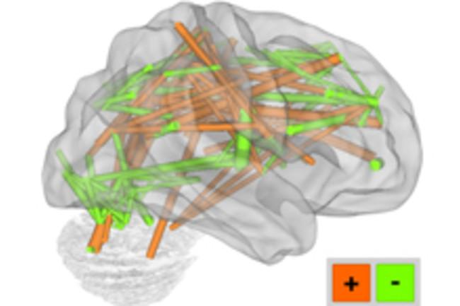 BrainConnectivity.jpg