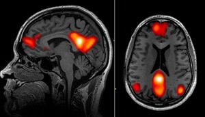 fmri-brain