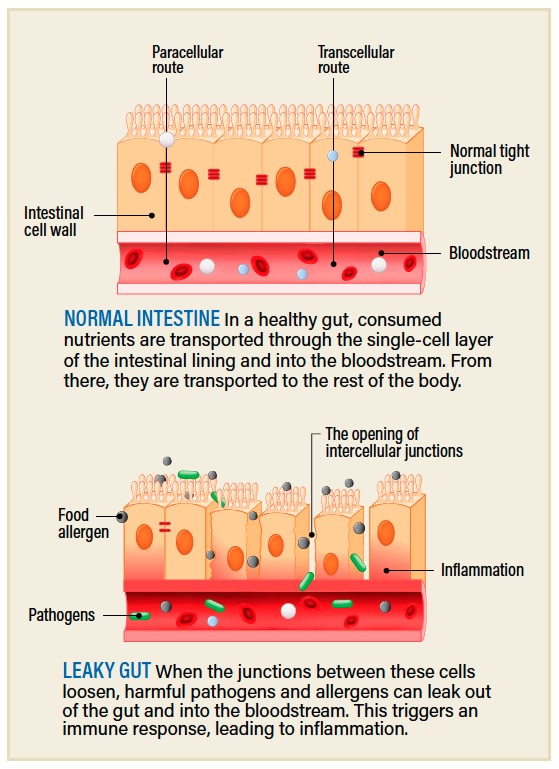 intestinal lining