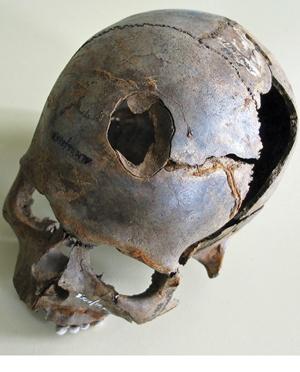 3500 year old skull