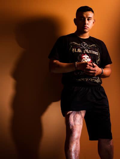 steam cell healing thigh muscle