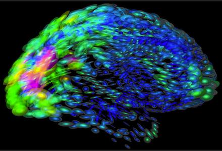 jellybean-brain.png