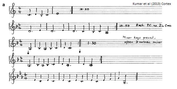 musicalhallucination.png