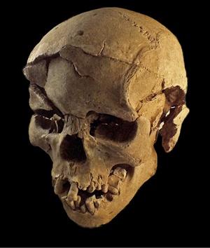 fracture skull