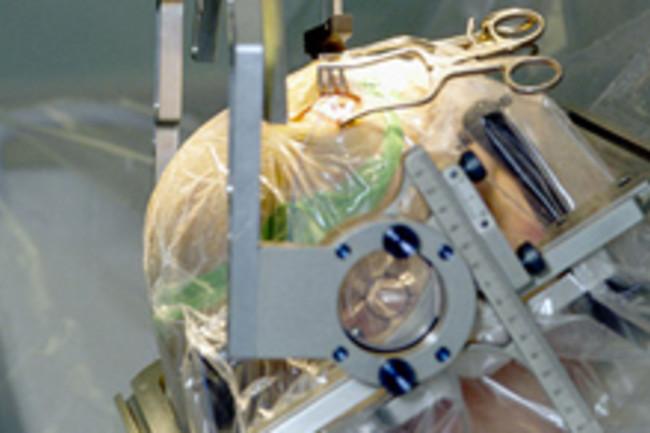 parkinsons-surgery.jpg