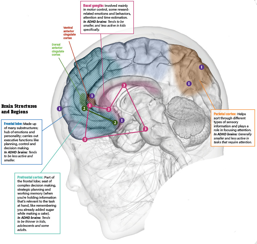 ADHD in the brain infographic