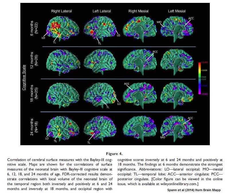 cognition_vs_brain.png