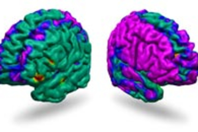 brains-depressed.jpg