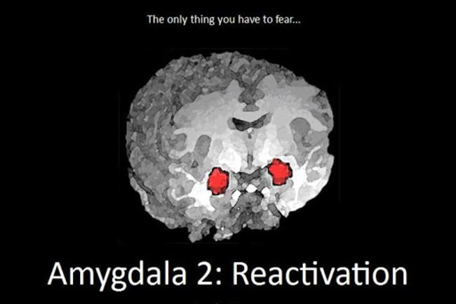 Amygdala Neuroskeptic - NEEDS CREDIT
