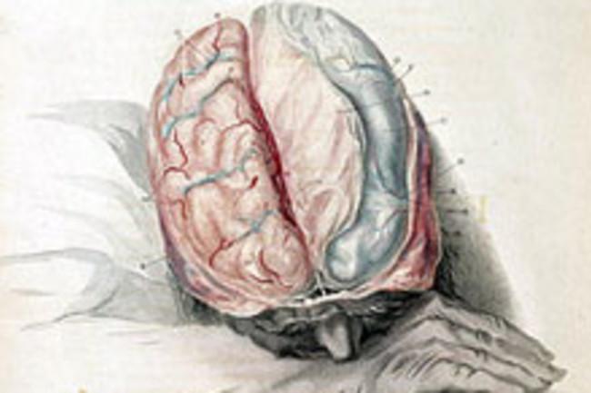 brainweb.jpg