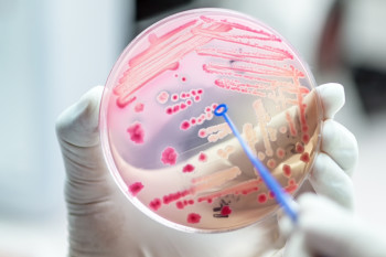 Bacteria Pass Antibiotic Resistance Between Themselves in Just Hours