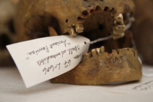 Morton-Collection-skull-300x199.jpg