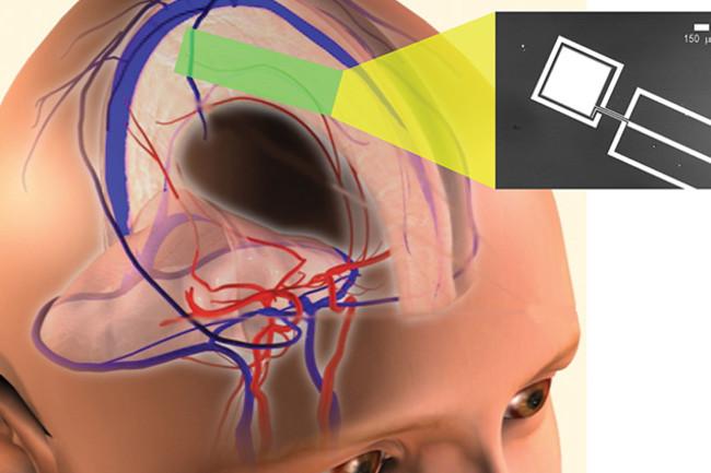 brain-sugar.jpg