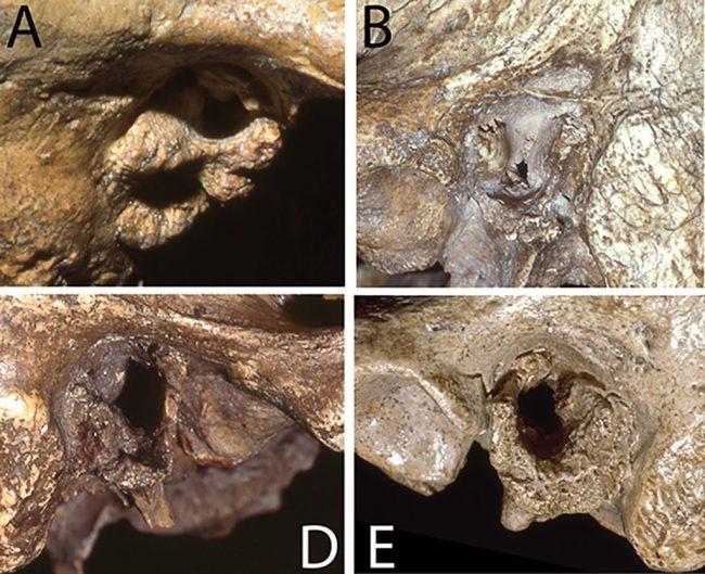 Neanderthal Exostoses - PLOS One