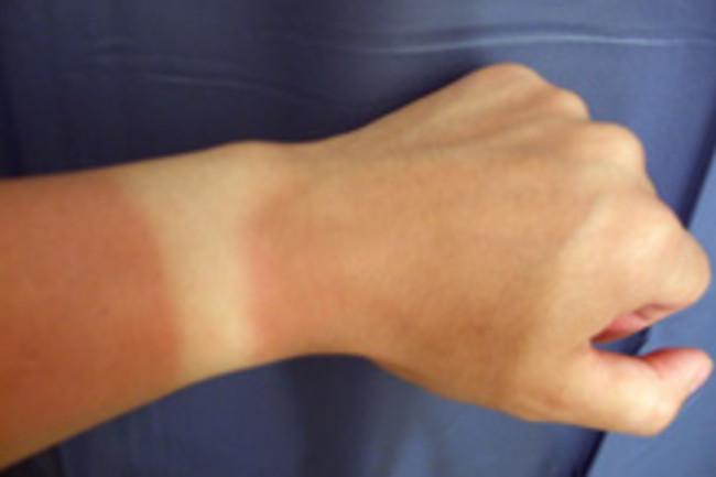 sunburn2.jpg