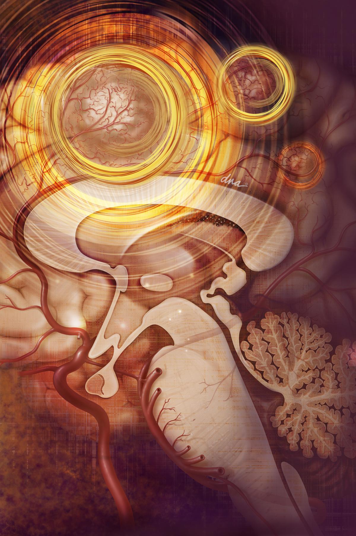 Tumor Illustration - Science Source