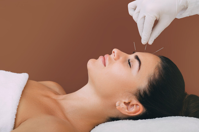 acupuncture needles forehead - shutterstock