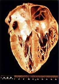 Chagas_heart.jpg
