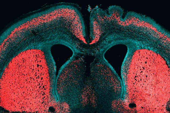 brain-gene.jpg