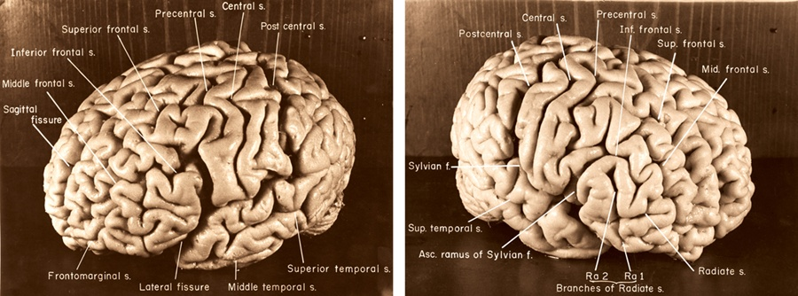 brains-side-by-side