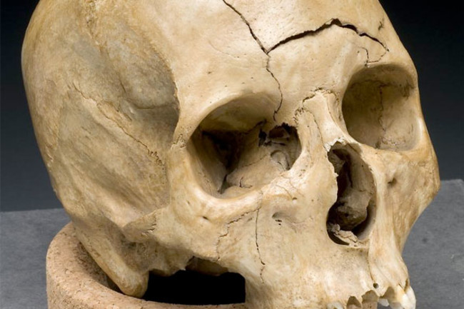 skullteeth.jpg