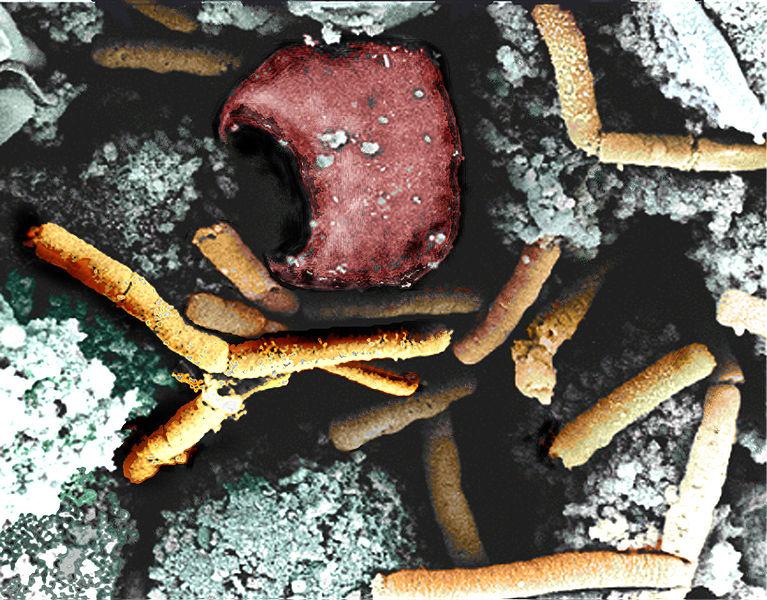 767px-Anthrax_color_enhanced_micrograph.jpg