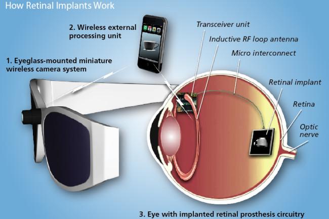 retinal-implants.jpg