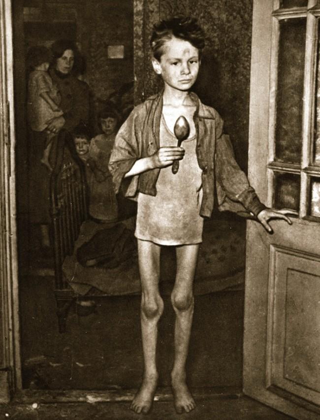 Hunger Winter boy starving - Stapleton Collection