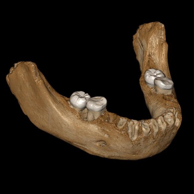 Denisovan jaw reconstruction - Dongju Zhang, Lanzhou University