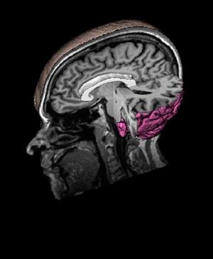 grandin-left-temporal-lobe