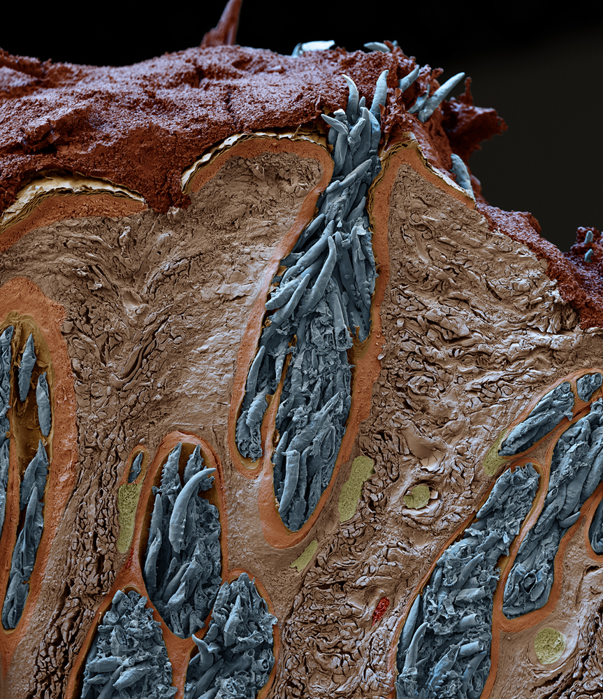 Face Mites - Science Source