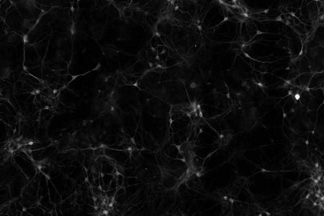Neurons Dish