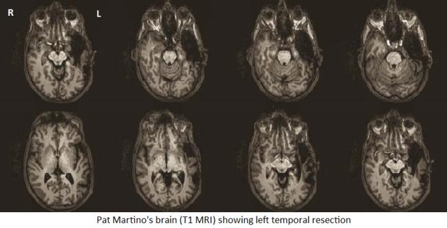 martino_brain.png