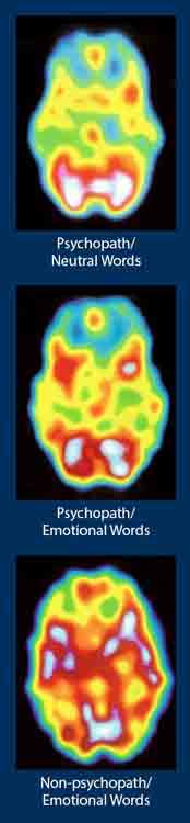 Psychopath Brain Scan - Robert Hare