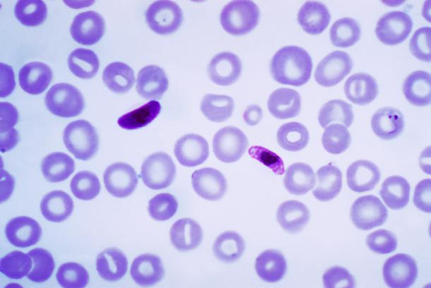 Malaria-610x408.png