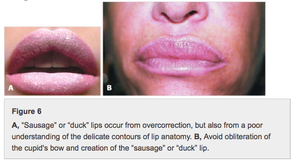duck_lips.png