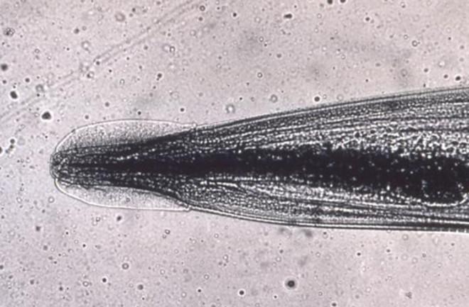 pinworm uman tratamentul simptomelor infecțiilor cu helmint
