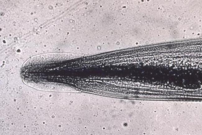 A pinwormák gyógyulásra vágynak - Hogyan nyilvánulnak meg a gömbférgek a felnőttekben